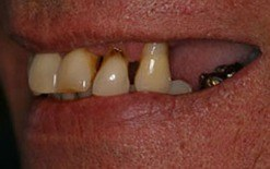 implant patient 4 before