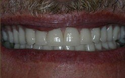 implant patient 6 after
