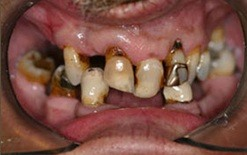 implant patient 6 before