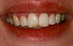 veneer patient 4 before