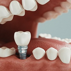 A digital image of a customized crown sitting on top of an implant placed in the lower arch of the mouth