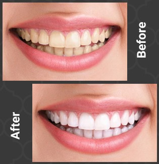 patient 2 before and after whitening