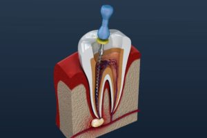 Model of an infected tooth and root canal in Fayetteville.